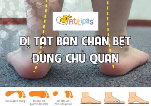 Dị tật chân bẹt ở trẻ và cách điều trị